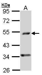 PDSS2 Antibody (PA5-21626) in Western Blot