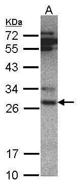 PSMA6 Antibody (PA5-21636) in Western Blot