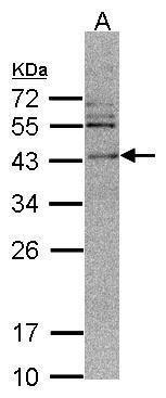 CaMKI delta Antibody (PA5-21643) in Western Blot