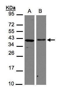 EMAP II Antibody (PA5-21644) in Western Blot