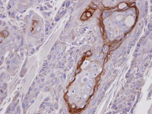 COT Antibody (PA5-21650)