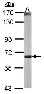COT Antibody (PA5-21650) in Western Blot