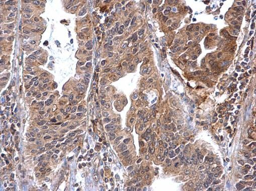 Annexin A7 Antibody (PA5-21651) in Immunohistochemistry (Paraffin)