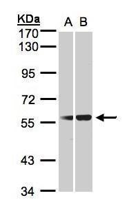 C1 inhibitor Antibody (PA5-21652) in Western Blot