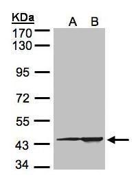 CMAS Antibody (PA5-21654) in Western Blot