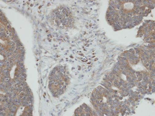 PPM1K Antibody (PA5-21658)