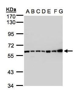 C2 Antibody (PA5-21659) in Western Blot