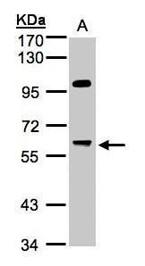 PPP1R16A Antibody (PA5-21661) in Western Blot