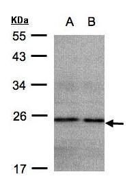 NDUFB9 Antibody (PA5-21668) in Western Blot