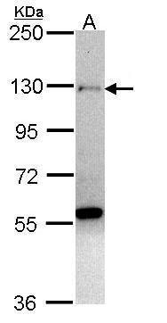 ZNF574 Antibody (PA5-21678)
