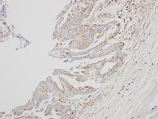 Interferon alpha-8 Antibody (PA5-21679) in Immunohistochemistry (Paraffin)