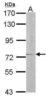 IL17RD Antibody (PA5-21682) in Western Blot