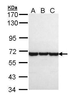 TCP-1 theta Antibody (PA5-21689) in Western Blot