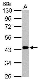Renin Antibody (PA5-21690) in Western Blot