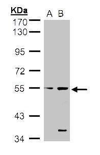 STYK1 Antibody (PA5-21695) in Western Blot