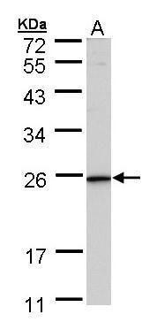 KLRG1 Antibody (PA5-21696)