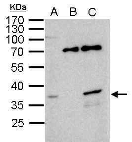 WBSCR22 Antibody (PA5-21698) in Immunoprecipitation