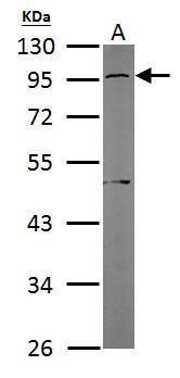 GNAS Antibody (PA5-21702) in Western Blot