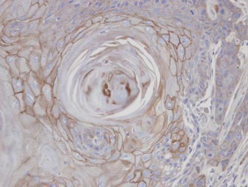 MAN1B1 Antibody (PA5-21703) in Immunohistochemistry (Paraffin)