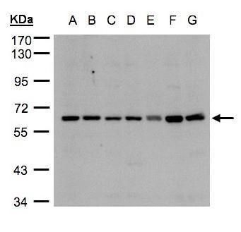 CYP24A1 Antibody (PA5-21704) in Western Blot