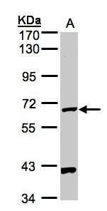 PANK1 Antibody (PA5-21707) in Western Blot