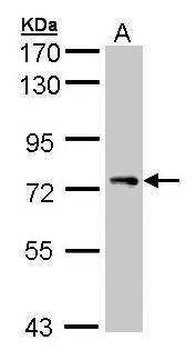 STAM Antibody (PA5-21708) in Western Blot