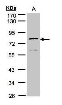 DPP3 Antibody (PA5-21709) in Western Blot