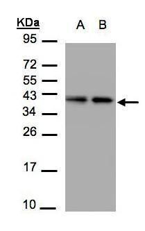 TBCC Antibody (PA5-21710) in Western Blot