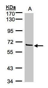 Factor XI Antibody (PA5-21713) in Western Blot