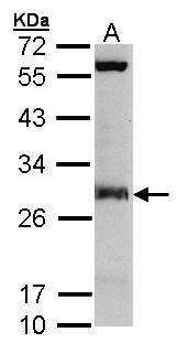 IDI1 Antibody (PA5-21720) in Western Blot