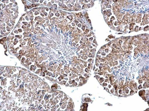 DGAT2 Antibody (PA5-21722)