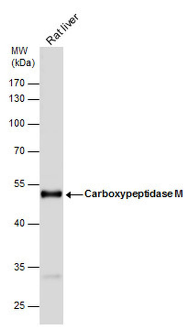 Carboxypeptidase M Antibody (PA5-21727)