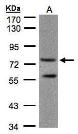 PDE4C Antibody (PA5-21734) in Western Blot