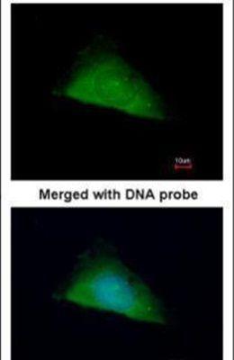 TRIM37 Antibody (PA5-21737)