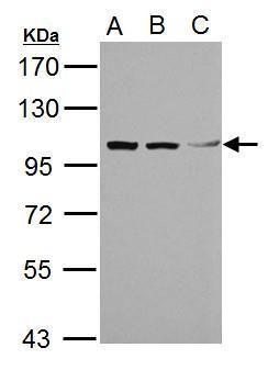TRIM37 Antibody (PA5-21737) in Western Blot