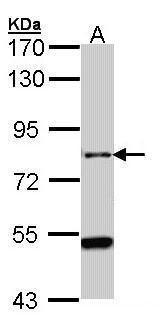CENTG2 Antibody (PA5-21741) in Western Blot