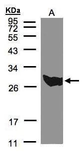 PGAM1 Antibody (PA5-21752)