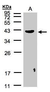 Pleckstrin Antibody (PA5-21753) in Western Blot