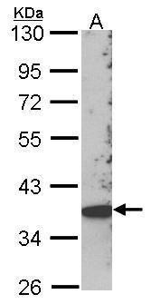 SKAP2 Antibody (PA5-21757) in Western Blot