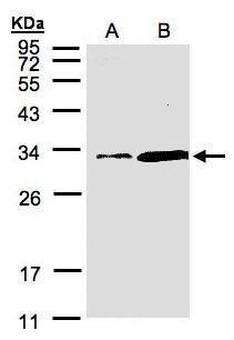 PITPN Antibody (PA5-21762)
