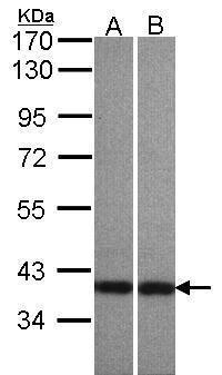 Centaurin alpha-1 Antibody (PA5-21767) in Western Blot