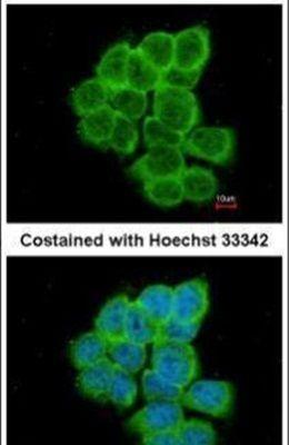 RGS17 Antibody (PA5-21771) in Immunofluorescence