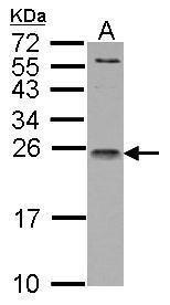 IL1RA Antibody (PA5-21776) in Western Blot