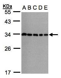 CHMP5 Antibody (PA5-21787) in Western Blot