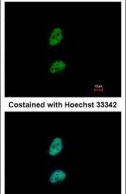 PSME3 Antibody (PA5-21789)