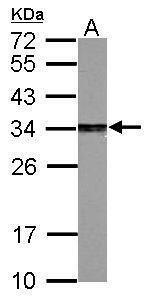 PSME3 Antibody (PA5-21789) in Western Blot