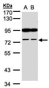 FSD2 Antibody (PA5-21795) in Western Blot