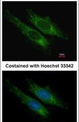 SUCLG2 Antibody (PA5-21810)