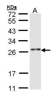 ZNF313 Antibody (PA5-21815) in Western Blot