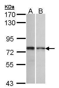 ZNF398 Antibody (PA5-21828) in Western Blot